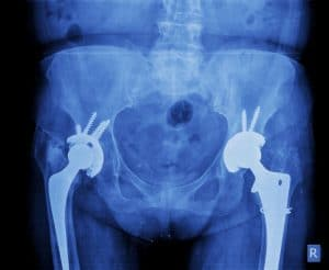 XRay-Hip-Implants-Replacement